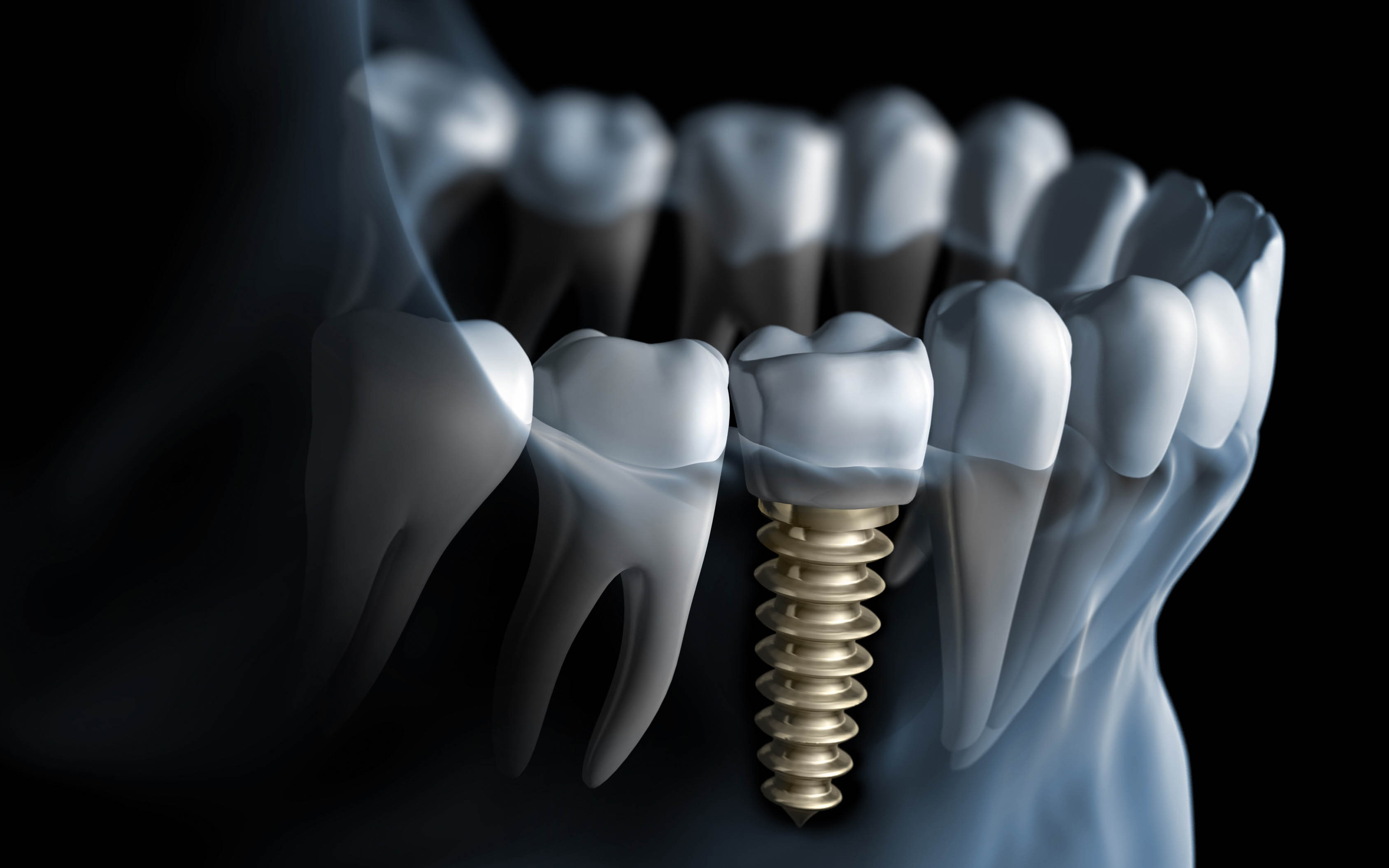 18-6-13-214234dental-implants